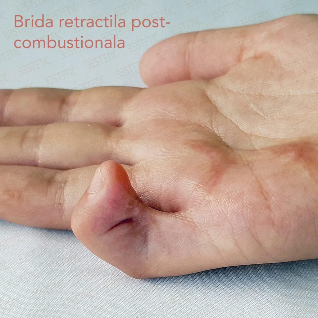brida retractie deget dupa arsura postcombustional