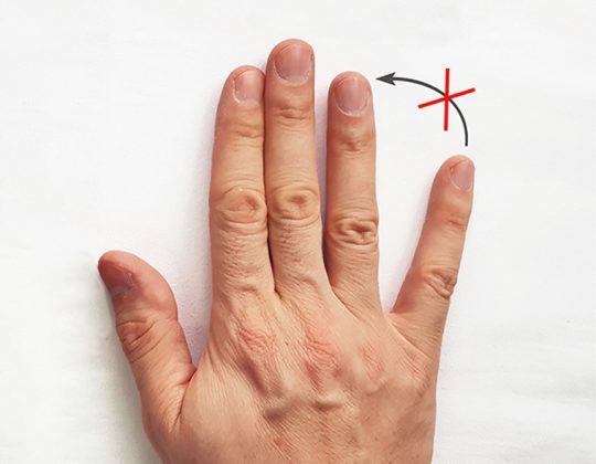 Semnul Wartenberg – degetul mic departat