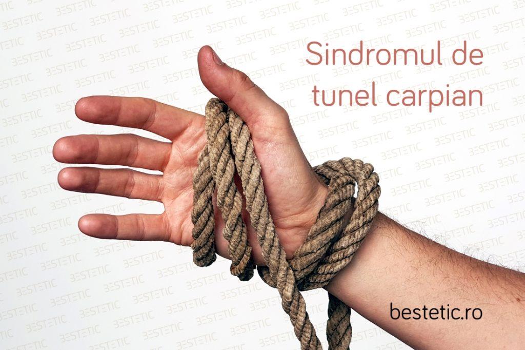 Sindromul de tunel carpian are ca manifestare principala amorteli si furnicaturi in mana