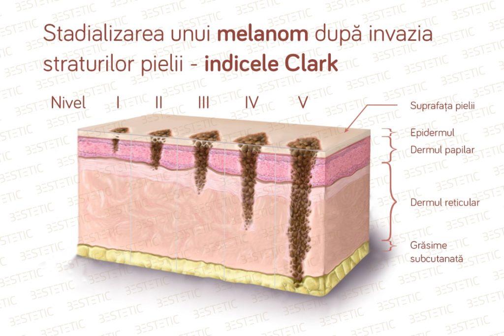 Melanom malign prognostic indice Clark