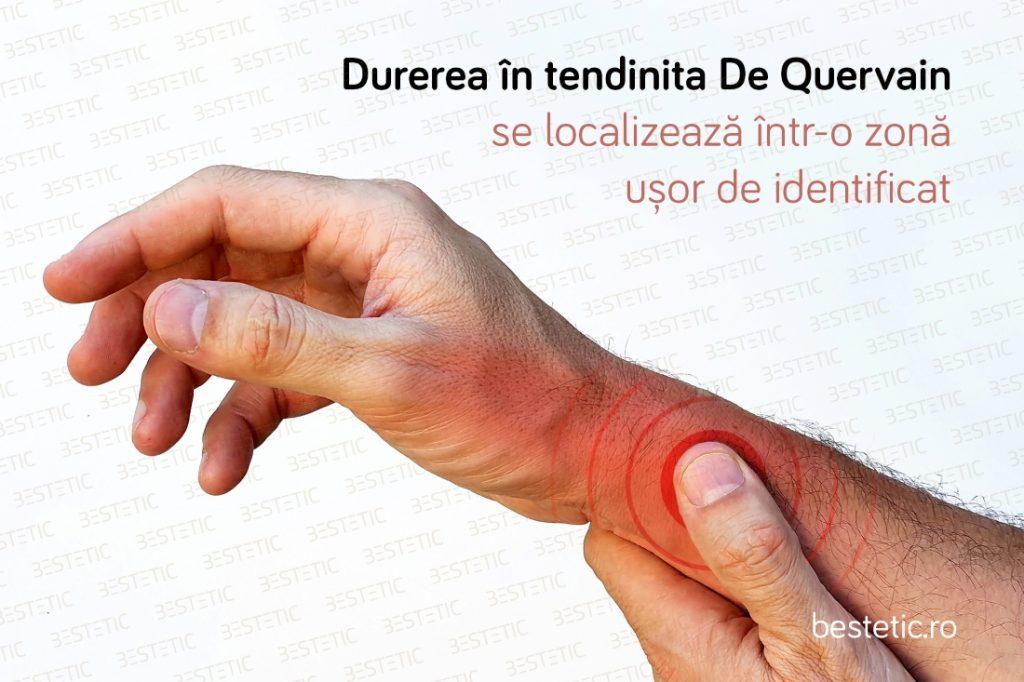 De ce dor incheieturile mainii si degetelor Bola De Quervain