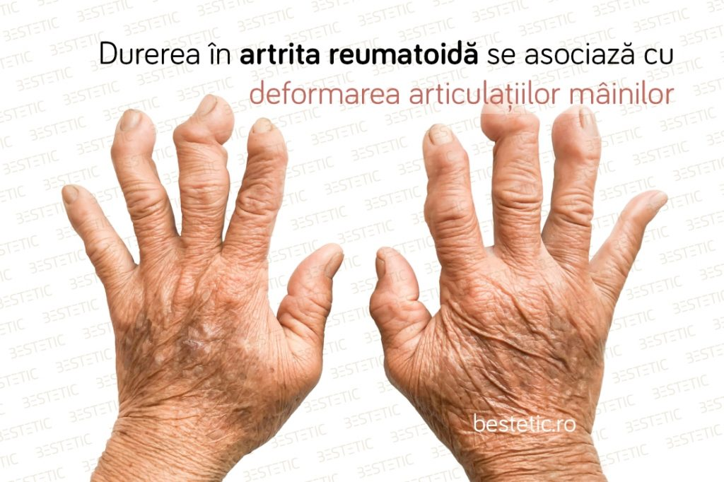 De ce dor incheieturile mainii Reumatism